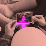 سونوگرافی و آزمایشهای مرتبط با بارداری
